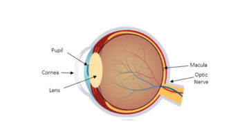 Congenital-Eye-Disease-Course